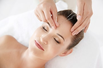 Estetisk akupunktur mot rynkor och fina linjer
