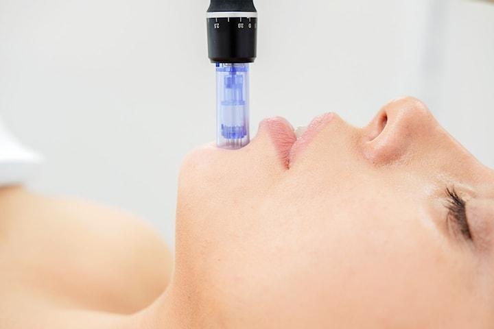 Microneedling-behandling, 60 min