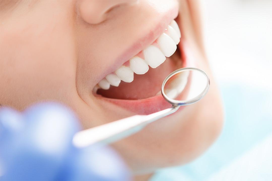 Tannundersøkelse hos Bergen Tannklinikk (1 av 1)