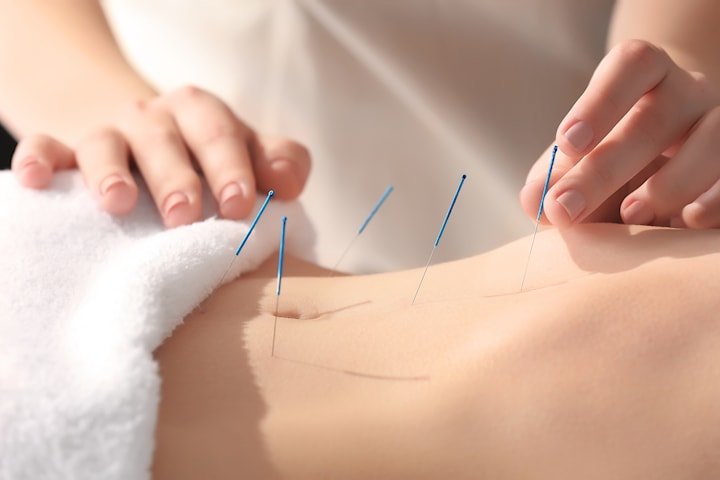 Hormonell balansering med akupunktur och örtbehandling