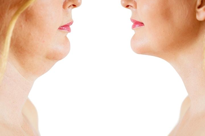 Belkyra injektionsbehandling för dubbelhaka