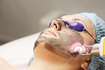 Hudföryngring med laser-peeling