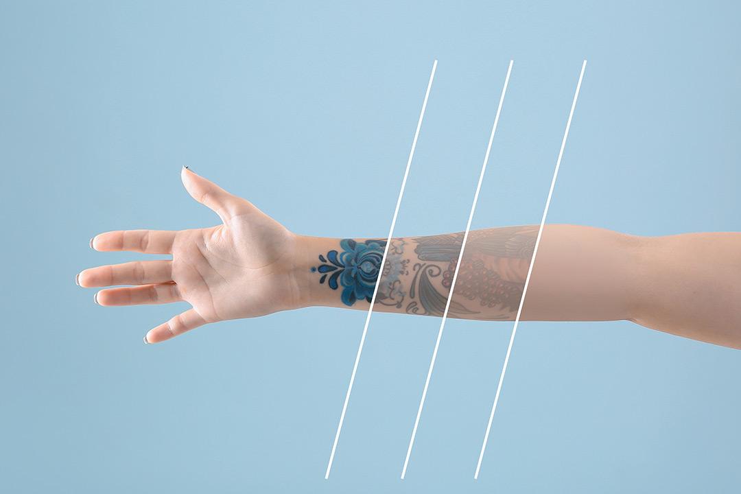 Fjerning av tatovering hos Colonklinikken (1 av 1)