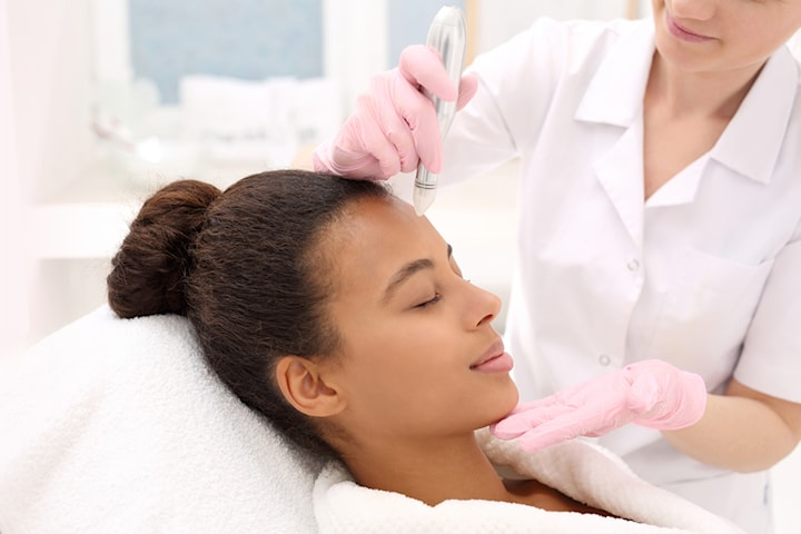 60 min micropenbehandling med hyaluronsyra
