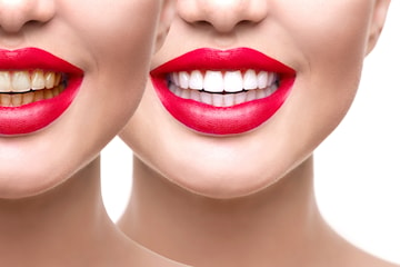 Kosmetisk tandblekning