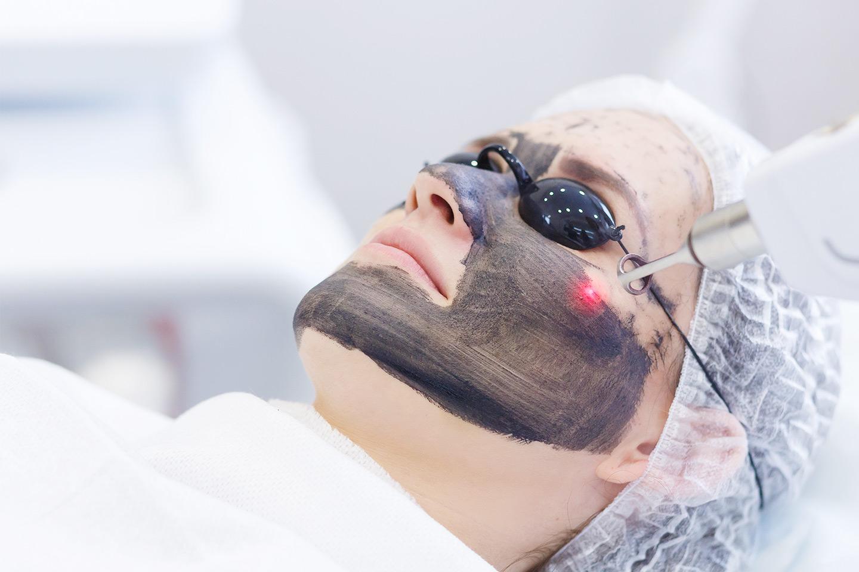 Hollywood carbon peeling hos Ruiz Prada hudklinikk sentralt på Frogner (1 av 1)