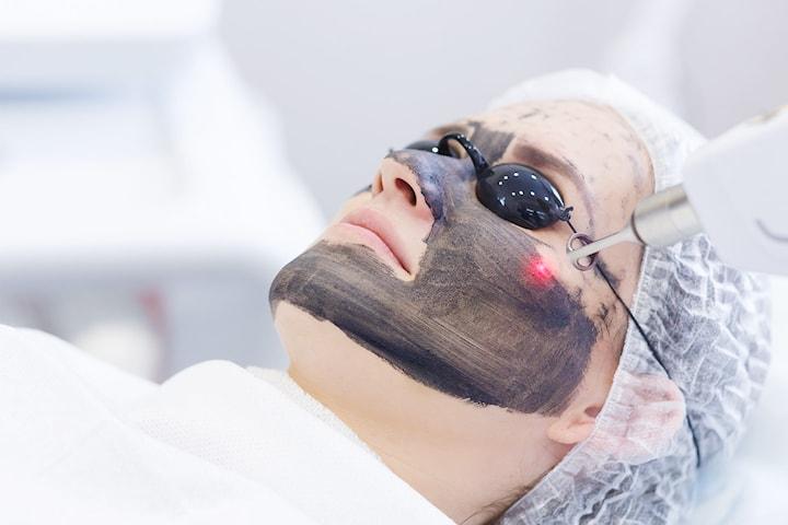 Hollywood carbon peeling hos Ruiz Prada hudklinikk sentralt på Frogner