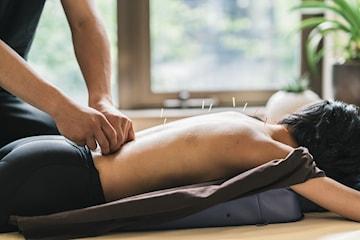 Akupunktur för stressminsking och immunförsvarsboost
