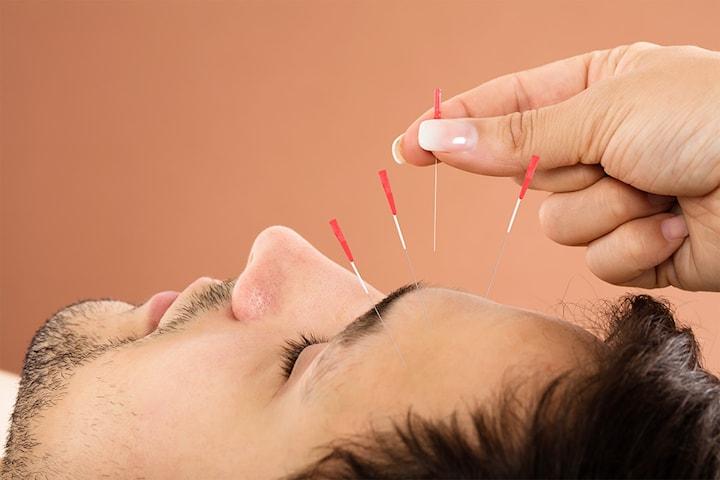 Akupunktur hos Corpus Vita på Nesttun