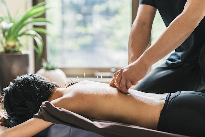 Klassisk kinesisk akupunktur