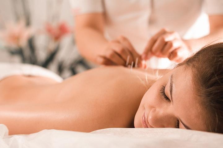 Akupunkturbehandling 90 min hos Sentrum Akupunktur