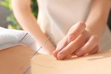 Massage med eller utan akupunktur eller koppning