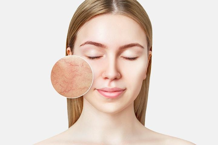 Diatermi för ytliga kärl hos Body & Face