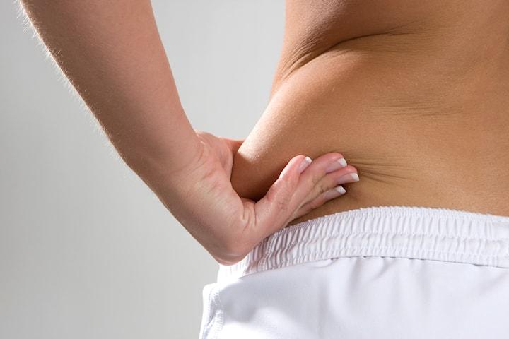 Riktad fettreducering med injektion
