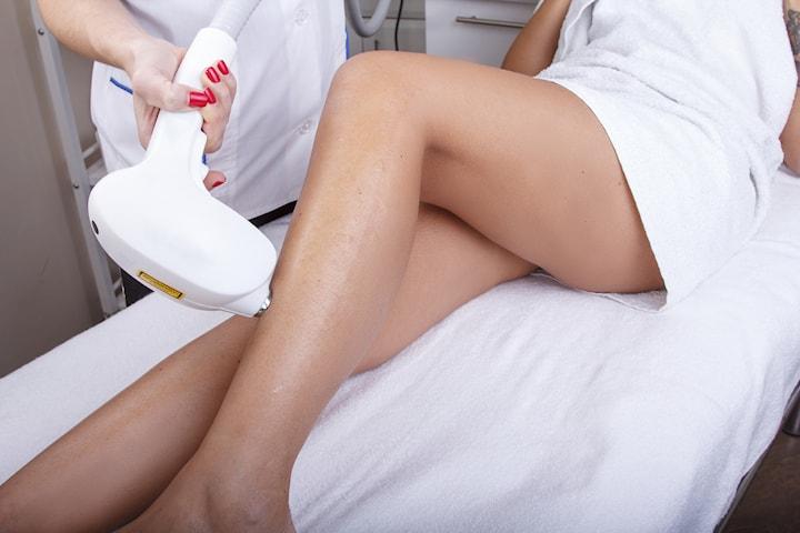 Hårborttagning med diodlaser - 3 behandlingsområden