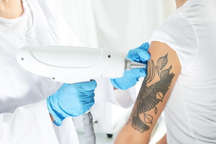 Tatueringsborttagning med laser