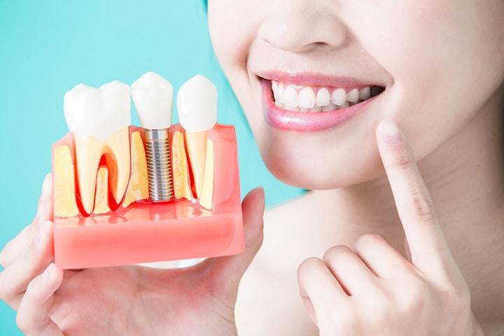Tandimplantat hos Family Dental Care Specialistkliniken