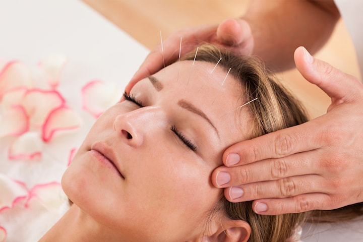 Kosmetisk akupunktur hos Akuveda