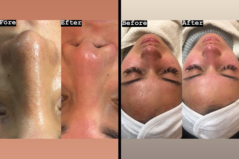 BB Glow ansiktsbehandling