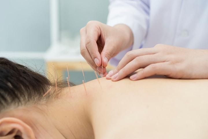 Akupunktur och/eller koppning