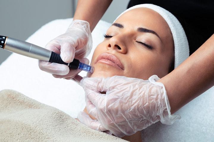 Microneedling och kemisk peeling hos Beauty Profession