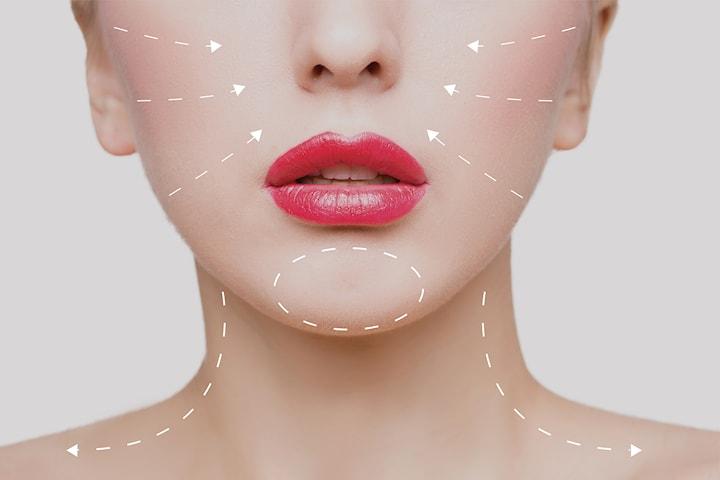 1 ml filler eller Botulinumtoxin hos Sherry Beauty Salong