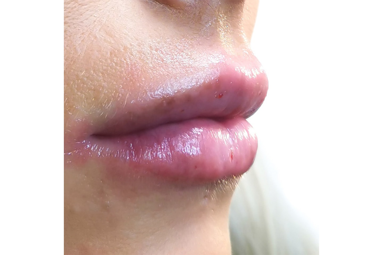 Fillerbehandling uten nåler hos Lashes By Susanne Benjaminsen Lorentsen