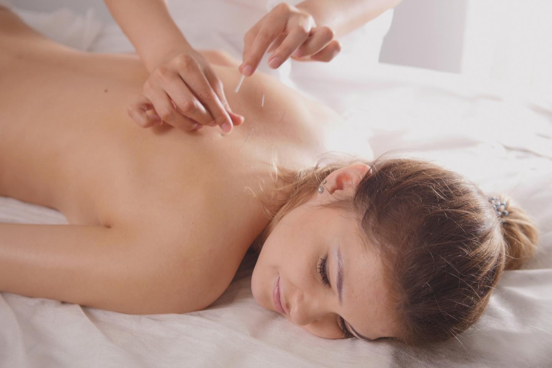 Akupunktur och behandlande massage (1 av 1)