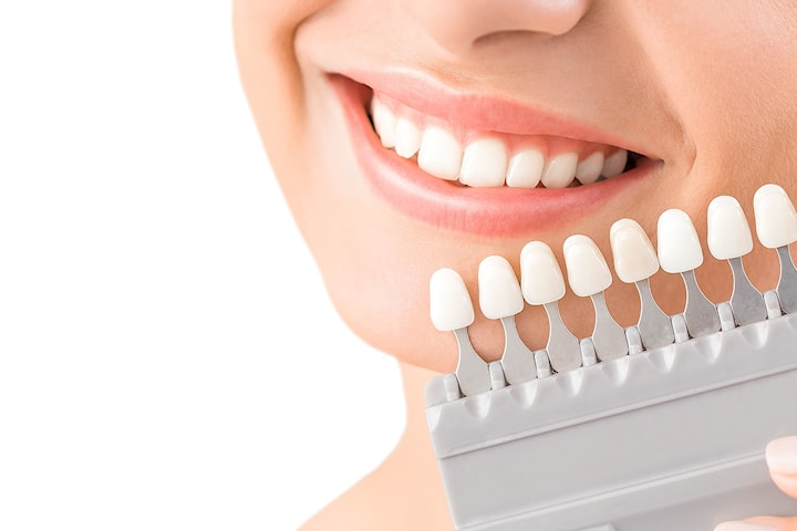 Tannbleking med Tooth Fairy hos Masglo Norway, tre behandlinger