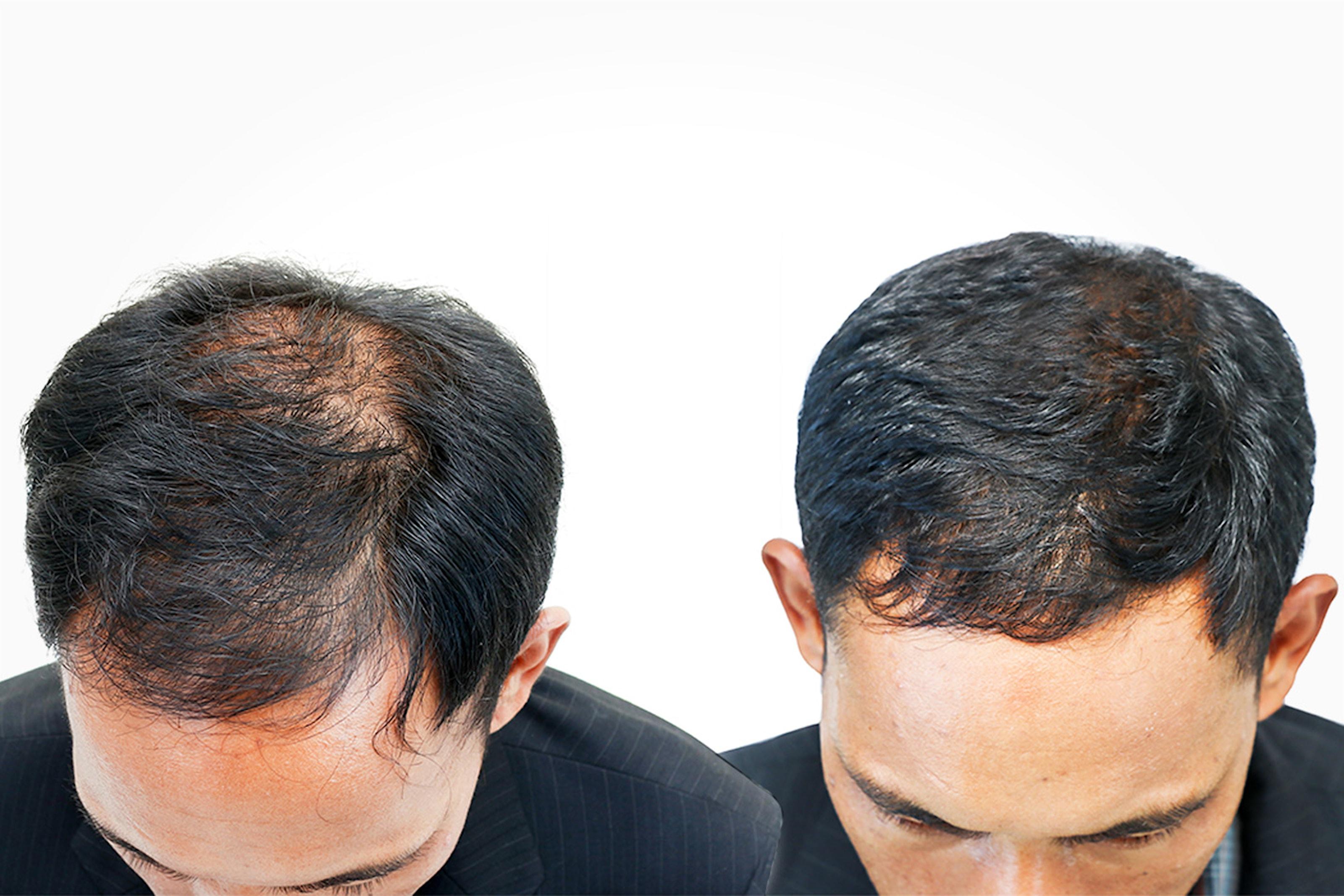 To PRP-Dracula behandlinger av hår hos Hud & Hår Klinikken