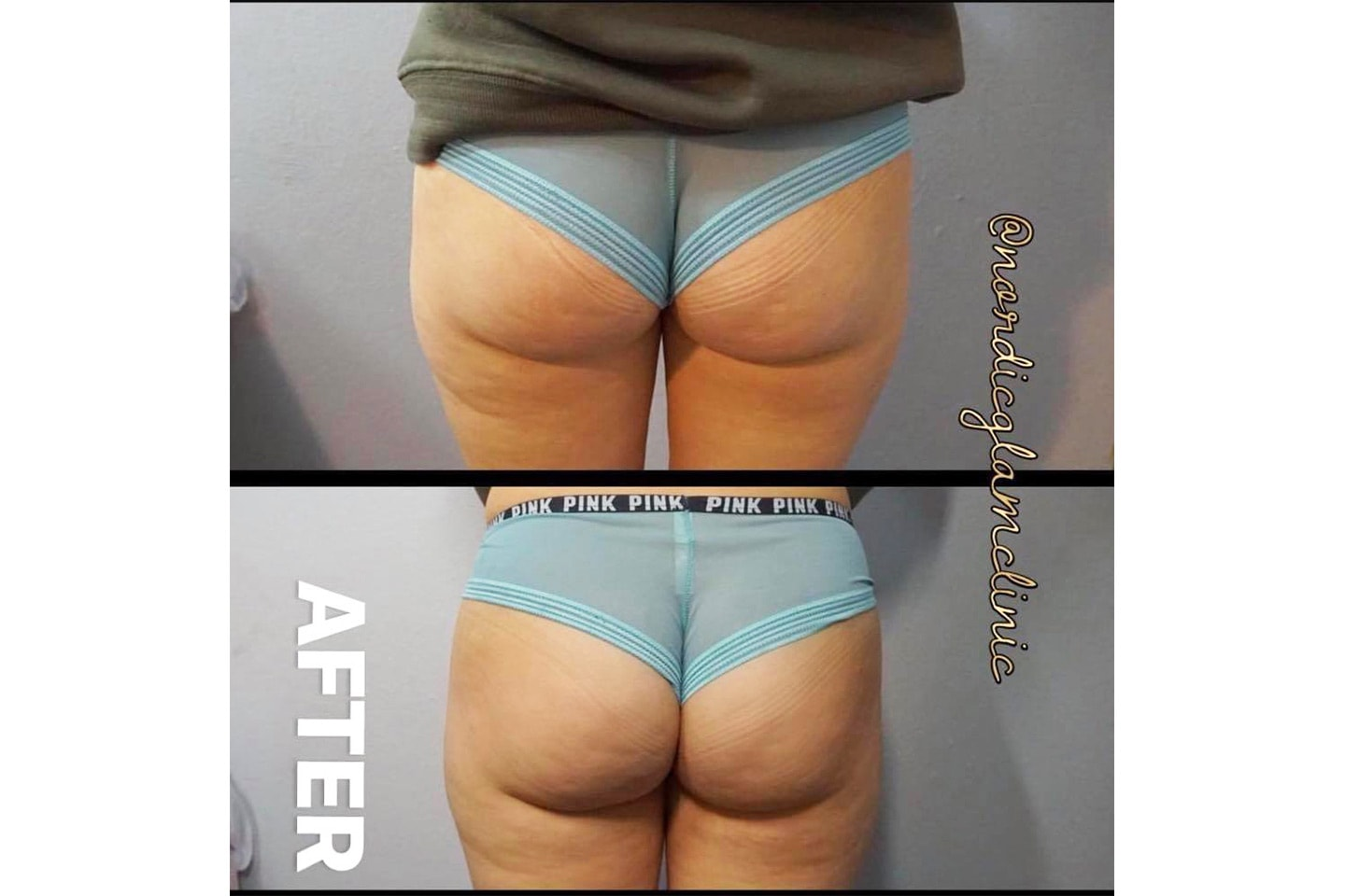 Brazilian butt lift hos Nordic Glam Clinic