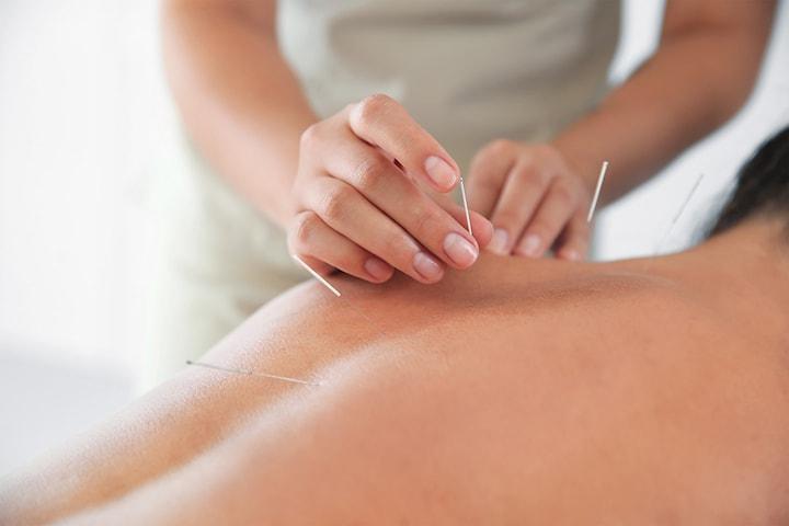 90 minutters akupunkturbehandling hos Wiker Akupunktur