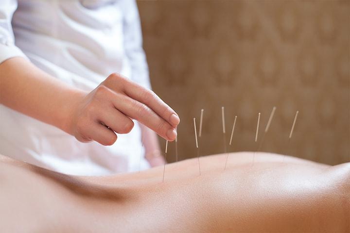 Akupunktur + konsultasjon hos Kina-akupunktur klinikk