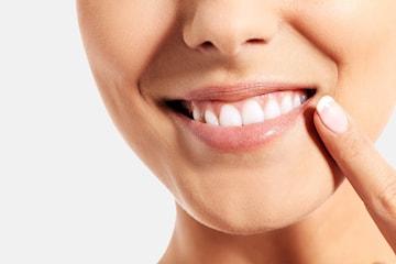 Tandblekning på klinik –årets julklapp