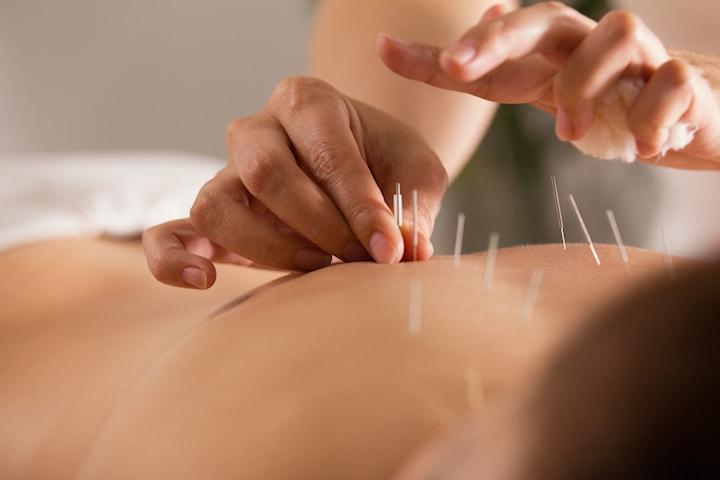 Akupunktur och massage, 60 min
