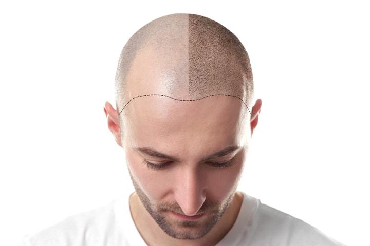 PRP-behandling mot håravfall