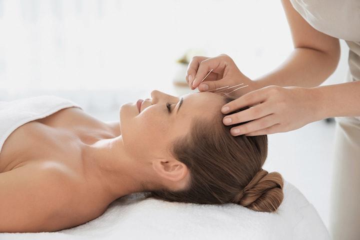 90 minutter akupunktur- og massasjebehandling hos Cheng Wang
