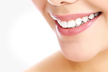 Tandblekning eller tandsmycke