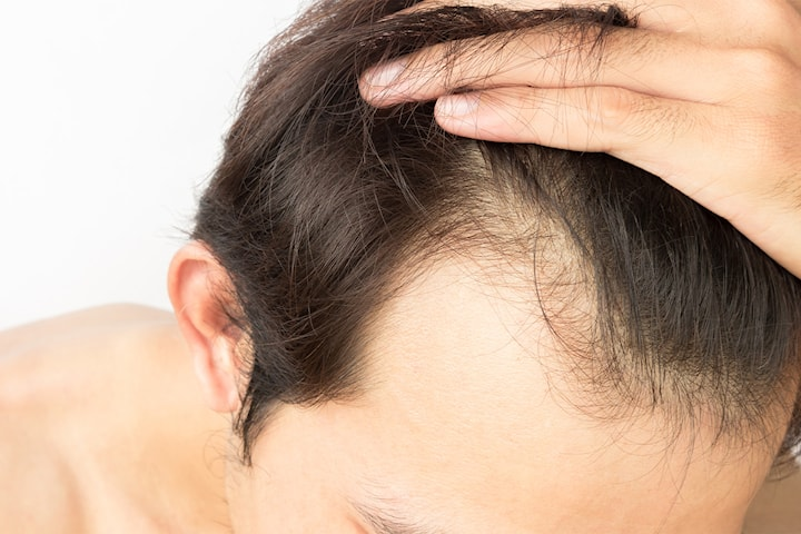 Tynn i håret? Prøv to PRP Dracula-behandlinger
