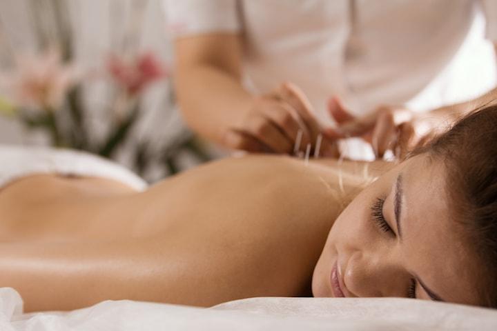 Få akupunktur hos Oslo Holistisk akupunktur, sentralt på Vika