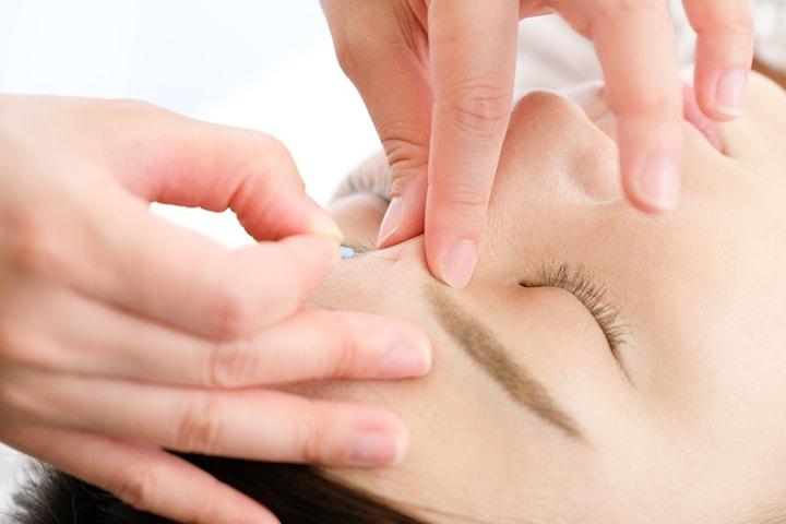 Estetisk akupunktur ansikte