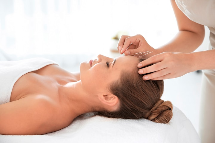 Akupunkturbehandling hos Akupunktur Cheng
