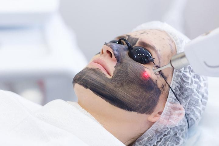 """Carbon Laser Peeling - """"Hollywood Peeling"""""""