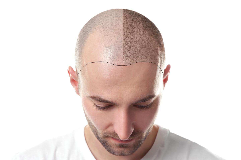PRP-behandling mot håravfall (1 av 1)