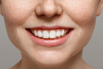 Fullständigt tandblekningspaket inkl. SuperSeal
