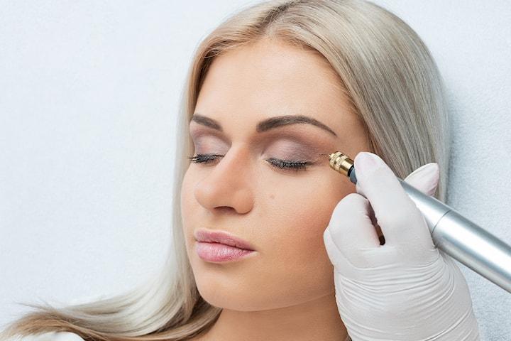 Ögonlockslyft och huduppstramning med Plasma Pen