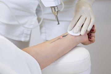 Borttagning av tatueringar med Yag laser