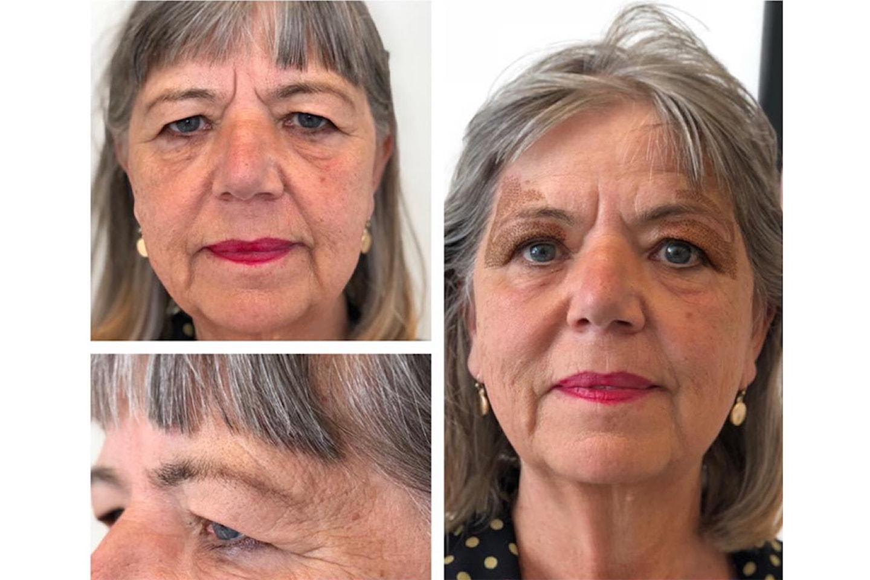 Ansiktsløft uten kirurgi hos Skin & Beauty på Torshov