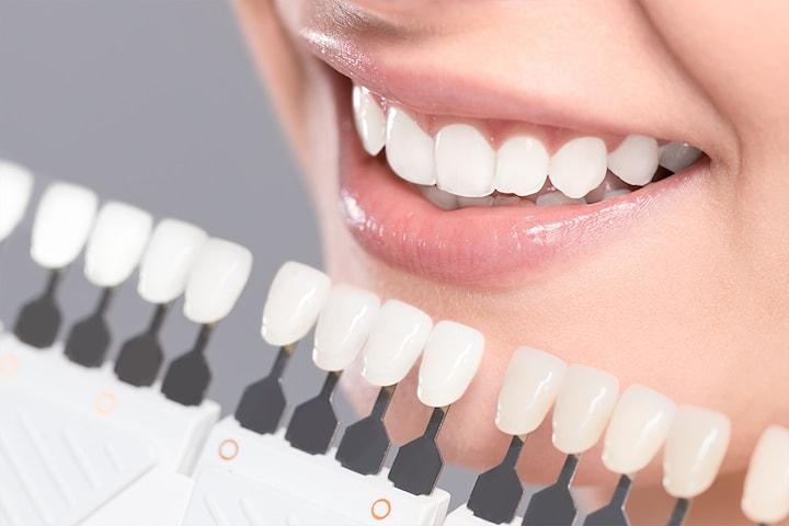 Kosmetisk tannbleking hos I.O Frisør Skjønnhet og Velvære