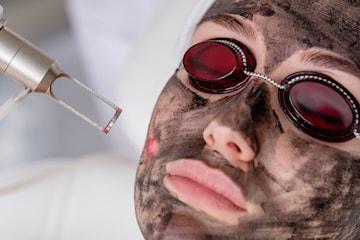 Reducera rynkor, minska porer, få fastare hud m.m., 1 eller 3 tillfällen